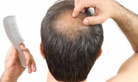 10 moduri de a opri căderea părului la bărbați