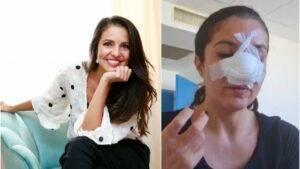 Cristina Joia a avut parte de o nouă operație estetică pentru repararea nasului. Cum se simte femeia acum?