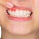 Cum recunoaștem o infecție dentară și cum o putem trata cât mai rapid?