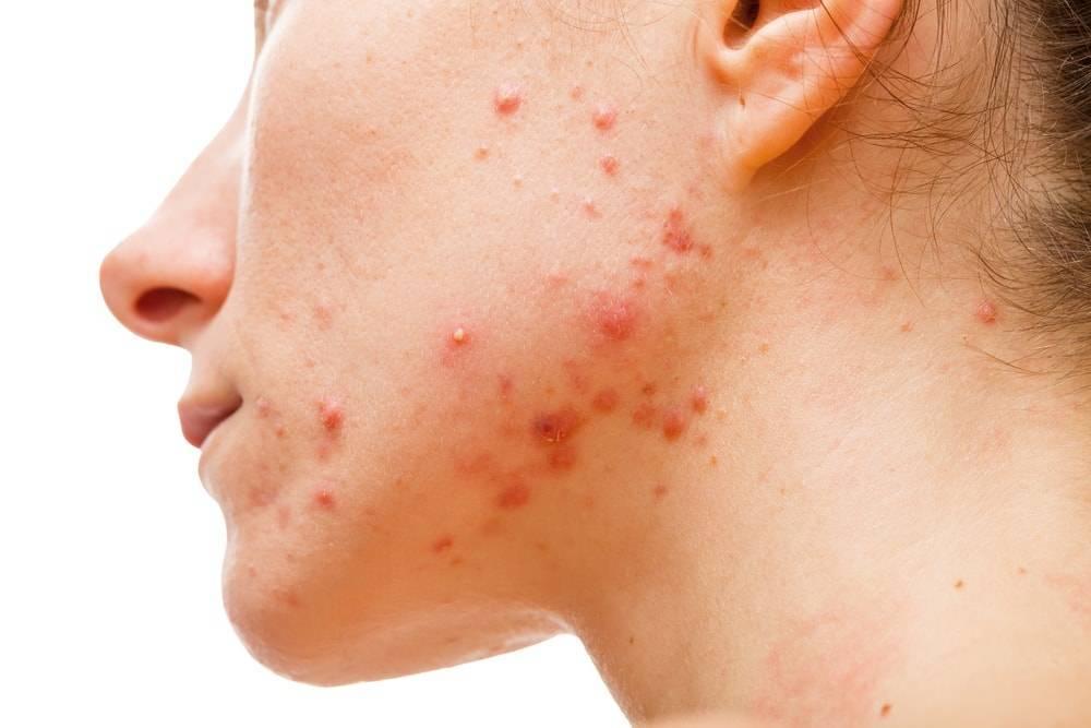 Vitamine pe care poți să le consumi pentru a scăpa de acnee! Ce spun cercetătorii?