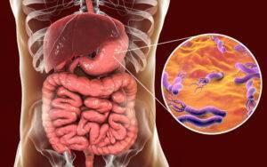 Lucruri pe care trebuie să le știi despre infecția cu Helicobacter Pylori