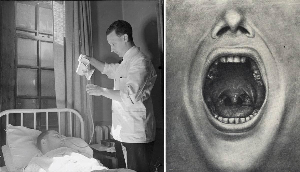 Smulsul dinților, o formă de terapie psihiatrică? Henry Cotton a ucis sute de pacienți crezând această teorie