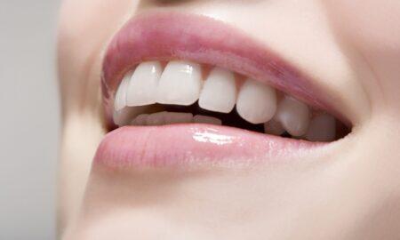 Tot ce trebuie să știi despre albirea dinților și care sunt cele mai eficiente variante pentru tine