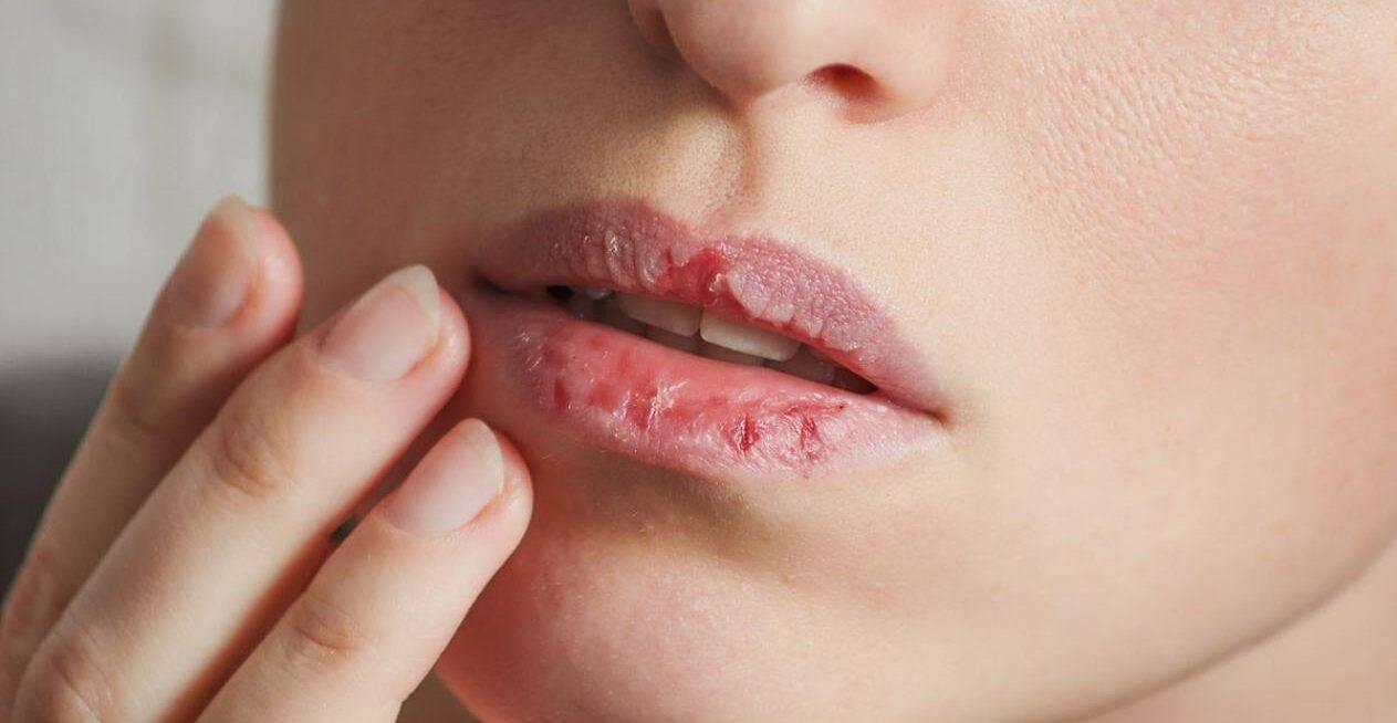 Cum poți hidrata suficient și corect buzele în sezonul rece. Buzele crăpate, o problemă mai mereu întâlnită